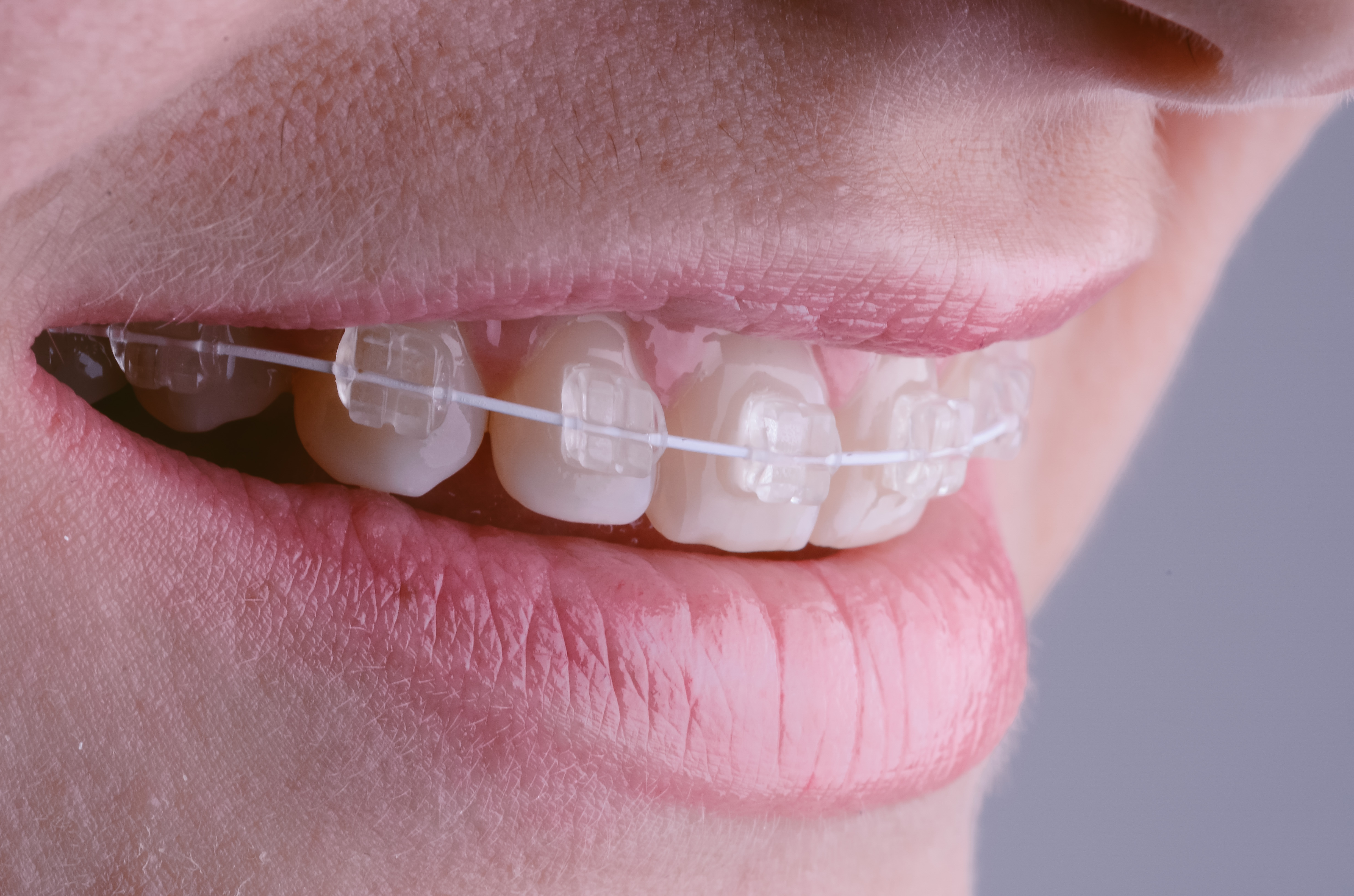 how to easily put invisalign upper aligners